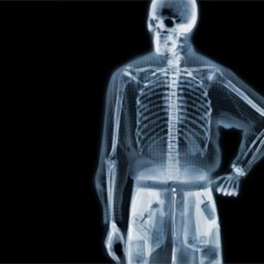 Рентгеновское зрение (380x380, 57Kb)