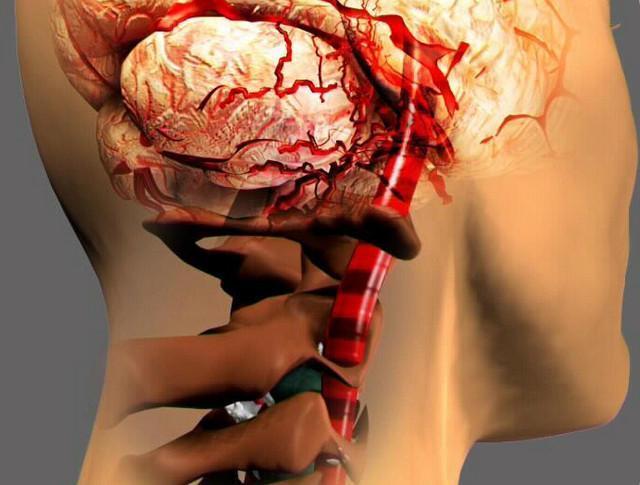 физкультура при шейном остеохондрозе на ютубе