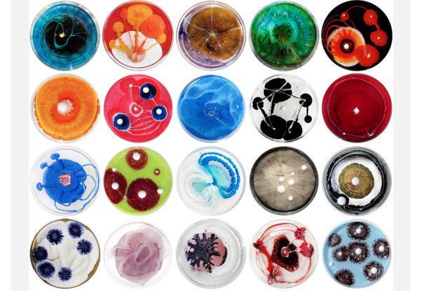 mikrob (602x416, 51Kb)
