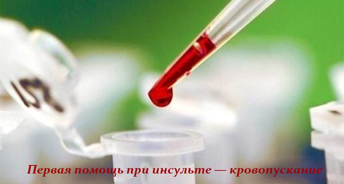 2749438_Pervaya_pomosh_pri_insylte__krovopyskanie (700x375, 254Kb)