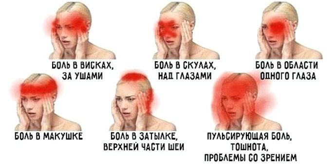 Болит макушка головы и теменная часть: причины