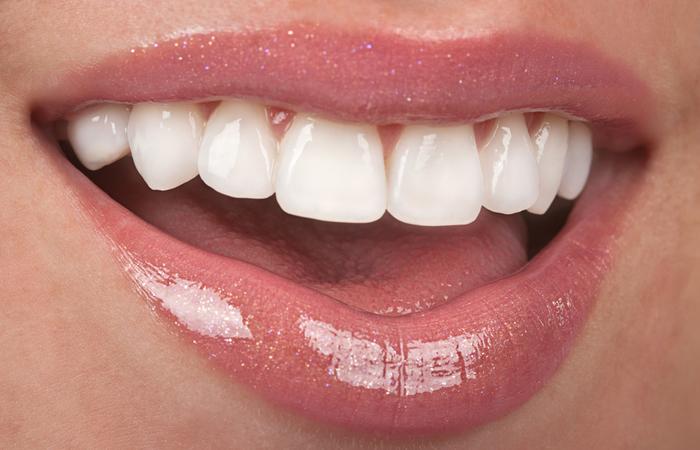 продукты для здоровья зубов/1464429536_produktuy_dlya_zdorovuyh_zubov (700x450, 271Kb)