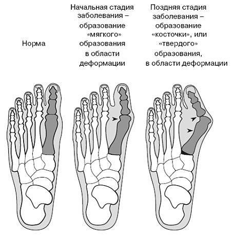 Как быстро вылечить косточку на ноге