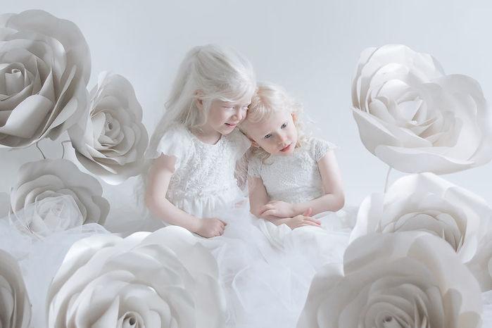 portrety-lyudey-albinosov_1 (700x466, 37Kb)