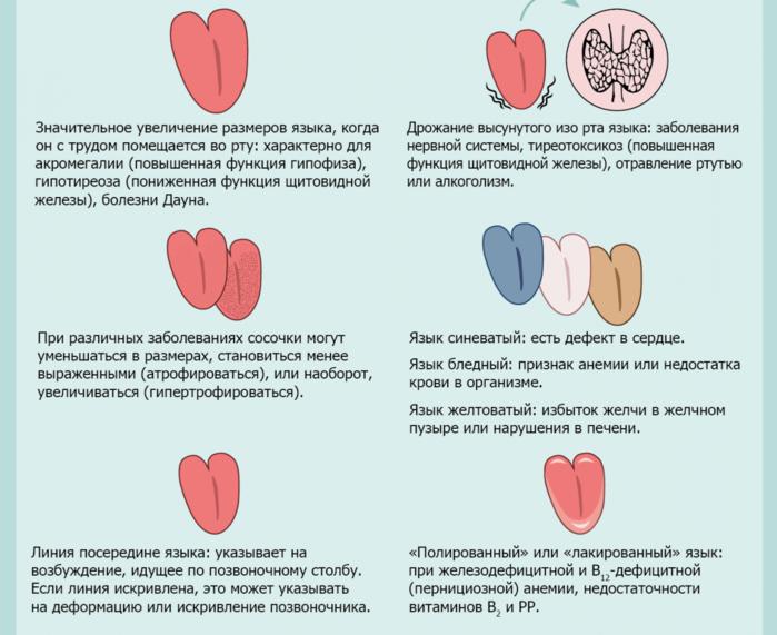 "alt=""Диагностика по языку""/2835299_Diagnostika_po_yaziky3_1_ (700x571, 405Kb)"
