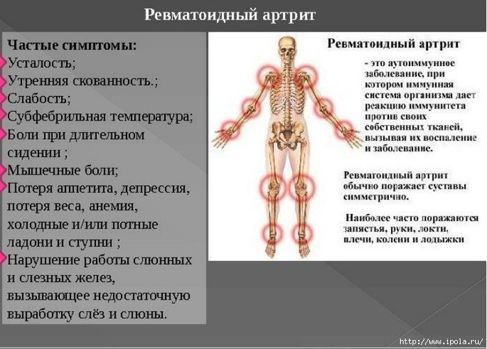 """alt=""""Упражнения для коленных суставов при ревматоидном артрите""""/2835299_REVMATOIDNII_ARTRIT (700x502, 191Kb)"""