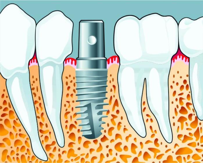 """alt=""""Как правильно выбрать зубной имплант?""""/3347825_Dentalnaya_implantaciya_ot_DentLux_2_ (700x561, 145Kb)"""