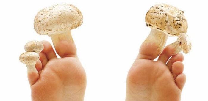 как лечить грибок на ногтях/3185107_kak_lechit_gribok_na_nogtyah (700x340, 31Kb)