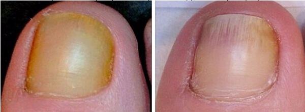 Можно ли победить грибок стопы и ногтей