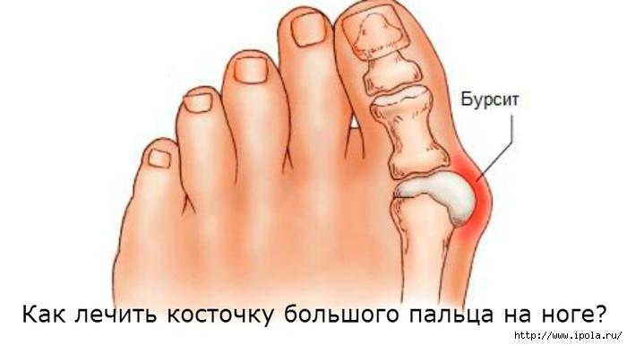 "alt=""Как лечить косточку большого пальца на ноге?""/2835299_Kak_lechit_kostochky_bolshogo_palca_na_noge (700x385, 104Kb)"