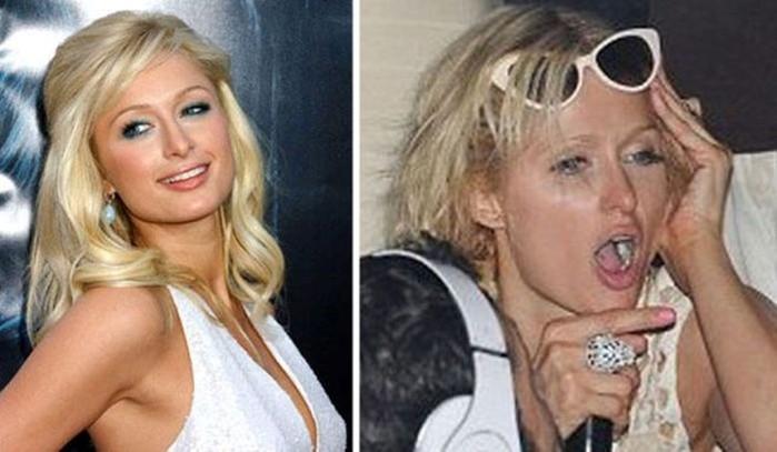 Как себя ведут пьяные знаменитости (фотографии)
