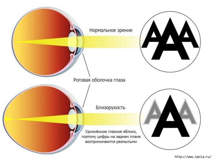 """alt=""""Упражнения для лечения близорукости """"/2835299_Yprajneniya_dlya_lecheniya_blizorykosti_blizorykost (700x525, 99Kb)"""