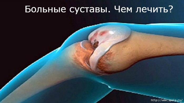 Афоризмы суставы как лечить кота от хруста в суставах