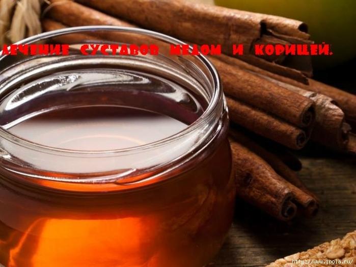 "alt=""Лечение суставов мёдом и корицей.""/2835299_Lechenie_systavov_myodom_i_koricei (700x526, 235Kb)"