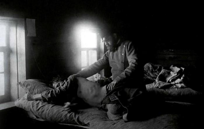 Болезни, которые на Руси считались самыми позорными
