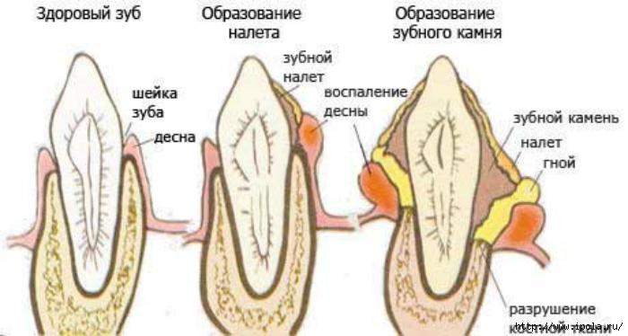 "alt=""Как избавиться от зубного камня?""/2835299_Kak_izbavitsya_ot_zybnogo_kamnya (700x374, 143Kb)"
