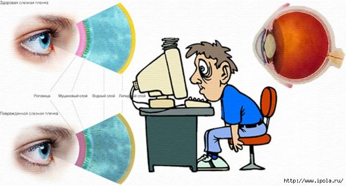 """alt=""""Синдром сухого глаза и его друг — компьютер""""/2835299_SINDROM_SYHOGO_GLAZA_I_KAK_S_NIM_BOROTSYa (700x378, 173Kb)"""