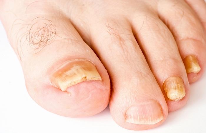 Если ногти на ногах пахнут что это