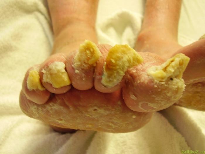 Грибок на ступнях ног лечение народными средствами