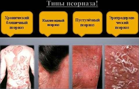 sankt-peterburg-sovremennie-metodi-lecheniya-kozhnih-bolezney-chugunov-psoriaz