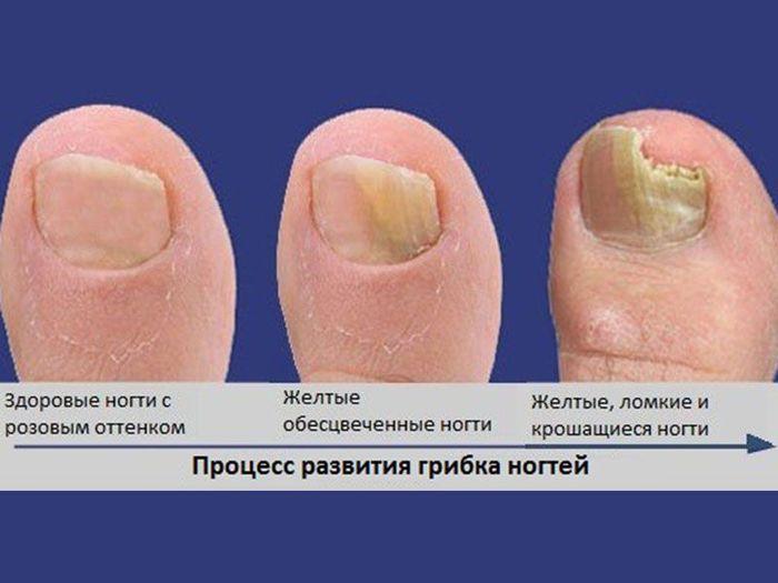 Грибок ногтей последняя стадия