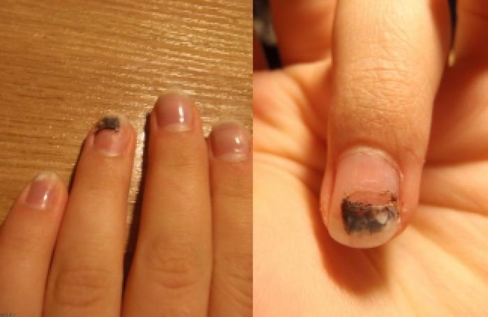 Заразен ли грибок ногтей