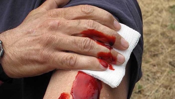 Что необходимо знать об огнестрельных ранениях
