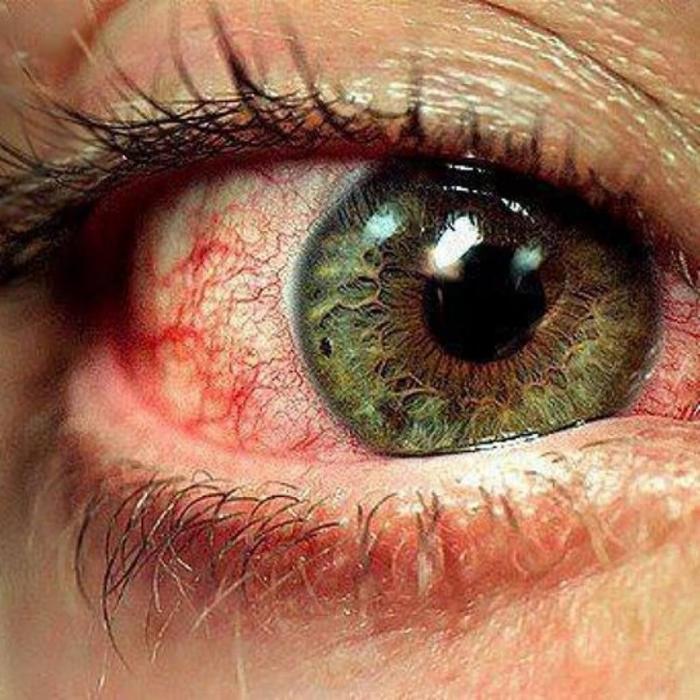 Десять причин, которые вызывают покраснение глаз