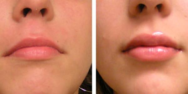 Можно ли накачать губы гиалуроновой кислотой