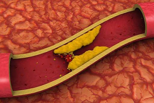 Рецепт народный от холестерина в крови