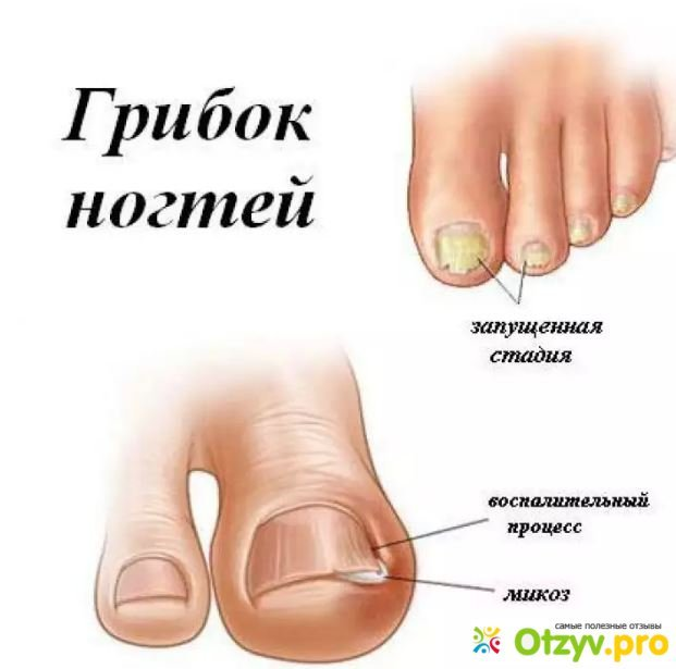 Как выглядит грибок ногтей на руках у ребенка