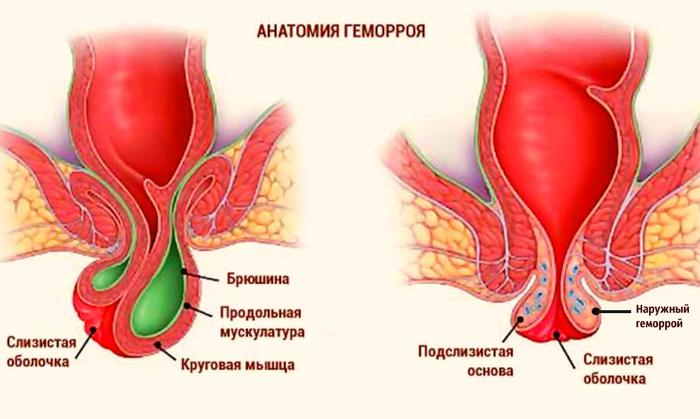 Геморрой лечение/6176544_Priznaki (700x419, 128Kb)