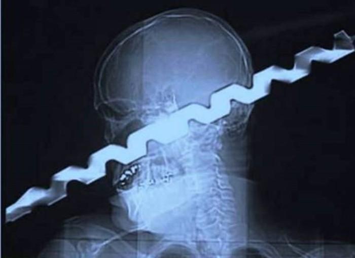 Самые необычные рентгеновские снимки— мобильные телефоны и боевые гранаты внутри пациентов