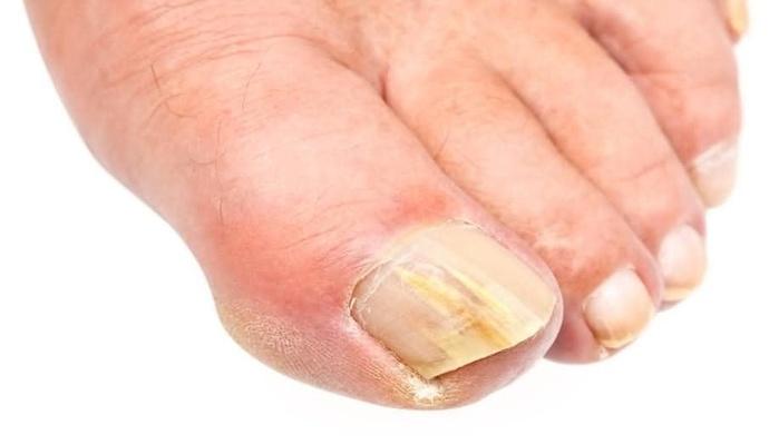 Из за чего возникает грибок ногтей на ногах