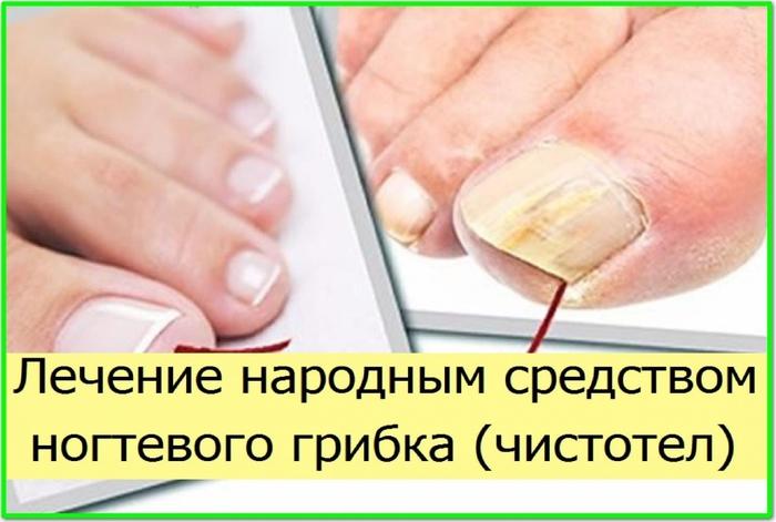 Рецепты для лечения грибка на ногтях