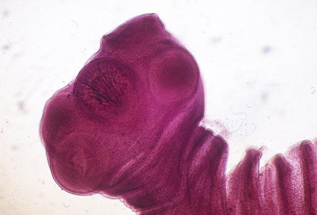Какие смертоносные паразиты скрываются в мозге человека? Пожиратели нервных клеток, черви в голове и микробы!