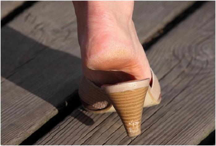 2 простых продукта сделают женские ножки идеальными!