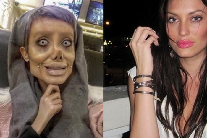 22-летняя иранка сделала 50 пластических операций, чтобы стать двойником Анджелины Джоли
