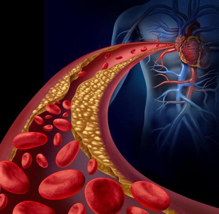 Как почистить сосуды организма: холестерино расщепляющий рецепт
