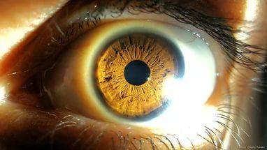 Опасность солнца для здоровья глаз/3368205_i (382x215, 17Kb)