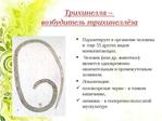 ������ glisty-vidy-prichiny-simptomy-i-lechenie-4-e1447095967340 (620x465, 146Kb)