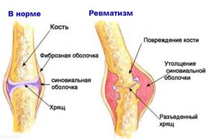 3407372_revmatizm56 (300x200, 29Kb)
