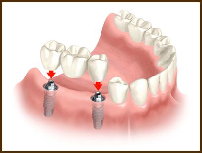 5644427_implant__zyb (410x310, 59Kb)