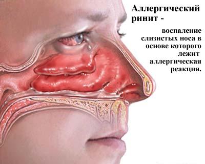 3925311_Allergicheskii_rinit (400x320, 59Kb)