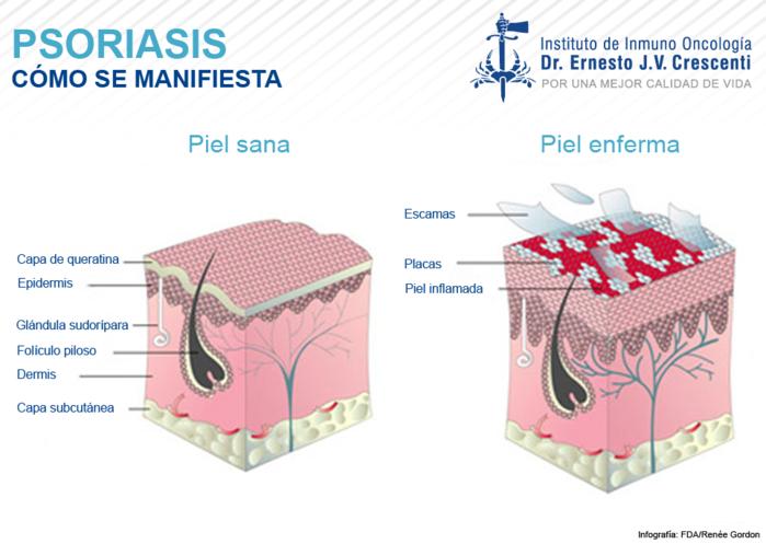 3925073_Psoriasis (700x497, 284Kb)