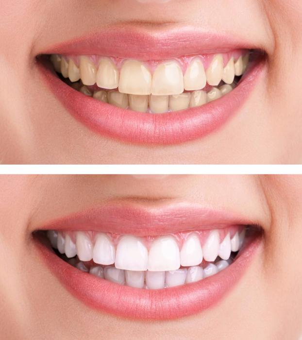 otbelivanie-zubov (622x700, 352Kb)