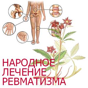 lechenie-revmatizma (300x300, 28Kb)