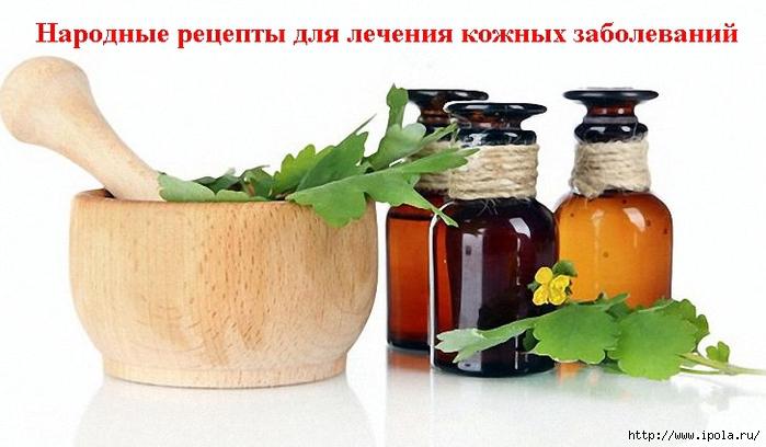2835299_Narodnie_recepti_dlya_lecheniya_kojnih_zabolevanii (700x408, 186Kb)