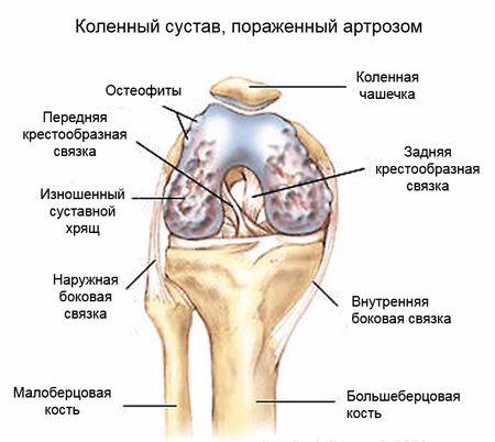 arthritic-knee-small (450x402, 129Kb)