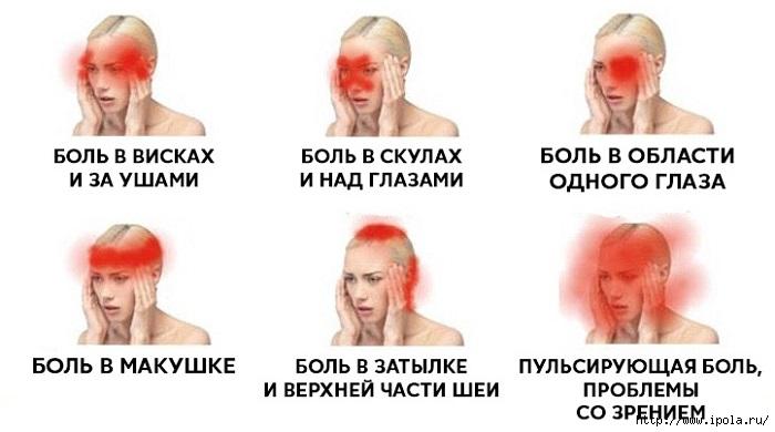 """alt""""Головная боль, на которую стоит обратить внимание.""""/2835299__1_ (700x390, 105Kb)"""